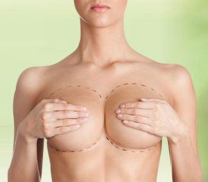 seins-chirurgie