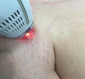vergeture-Laser