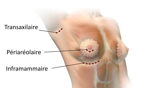 incisions implant