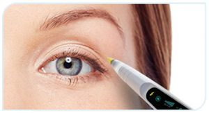 blepharoplastie-laser-tunisie