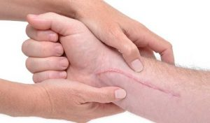 traitement-cicatrice-tunisie