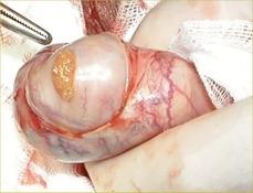 biopsie-testiculaire