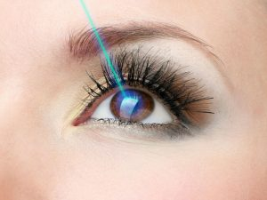 chirurgie-laser-yeux