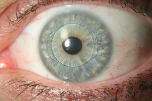 resultat-pose-implant-oculaire