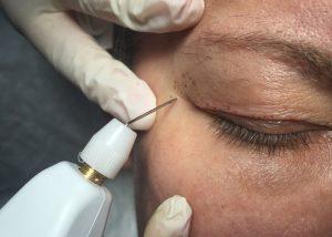 blepharoplastie-laser