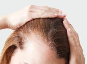 greffe-cheveux-femme
