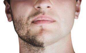 Greffe-de-barbe