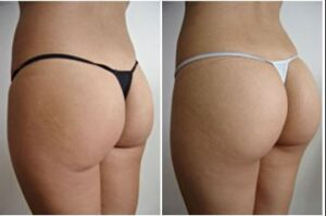 implants-fesses-avant-apres